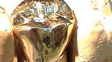 Gold im Mund – Warum sind Goldkronen so populär?